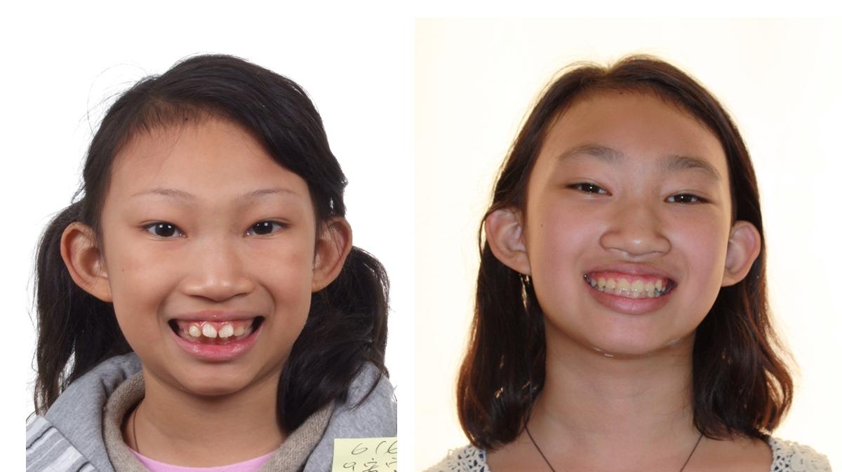 小朋友)来做上下颌骨的调整,而以最少的时间,达到最好的 牙齿矫正治疗