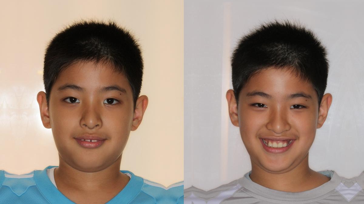 儿童牙齿矫正_儿童牙齿矫正地包天图片